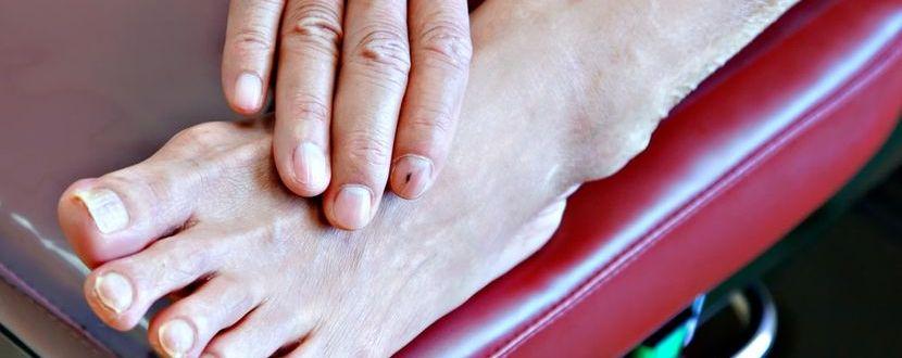 Krankheitsbedingte Schmerzen in den Füßen mit Cannabidiol entgegenwirken.